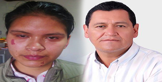 Leidy Jhoana Chasoy, jóven agredida por el Alcalde de Santiago Tito Barrera